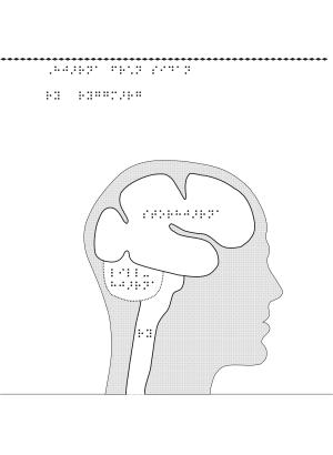 Människohuvud i genomskärning, hjärna.