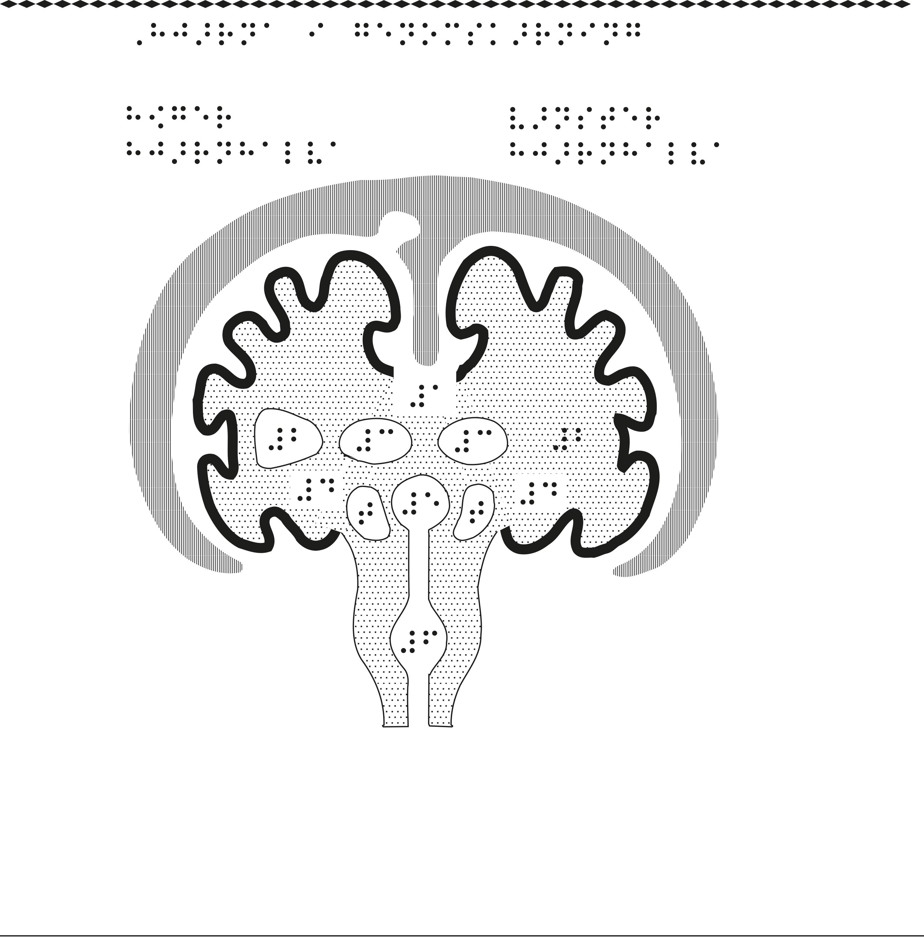 Hjärnan i genomskärning.